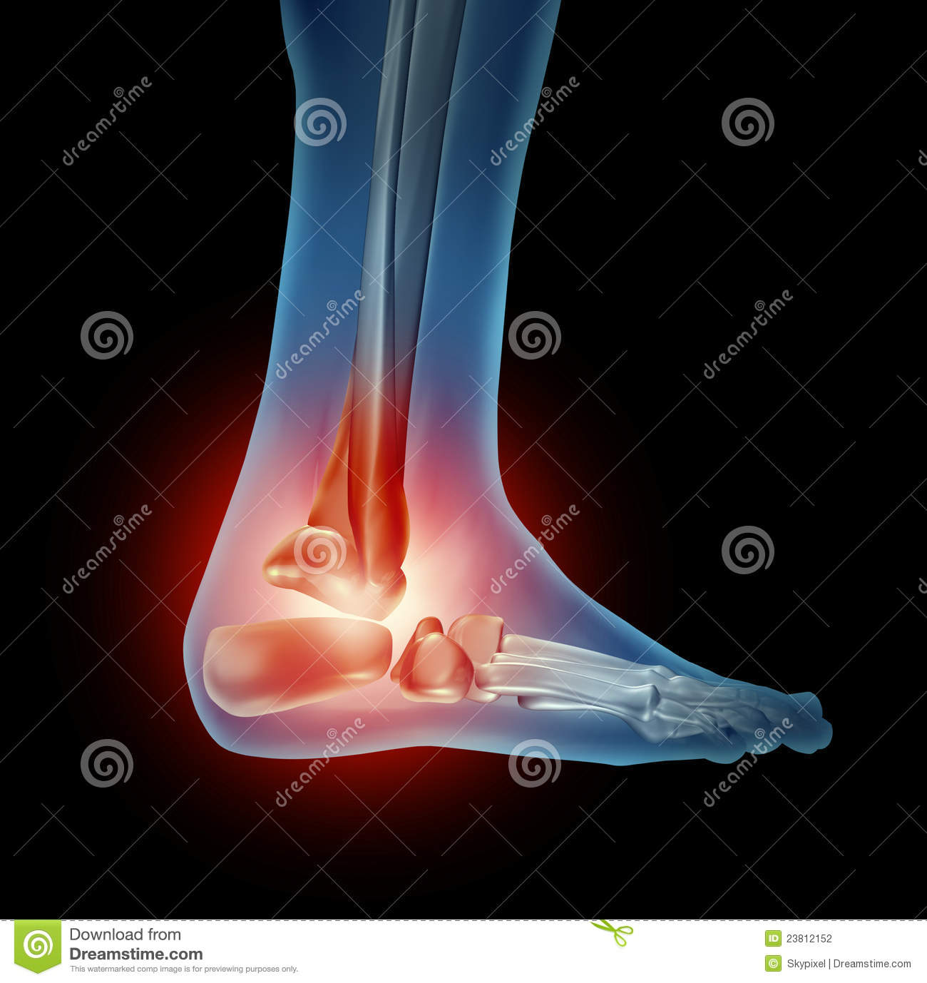 Ankle and foot pain from standing