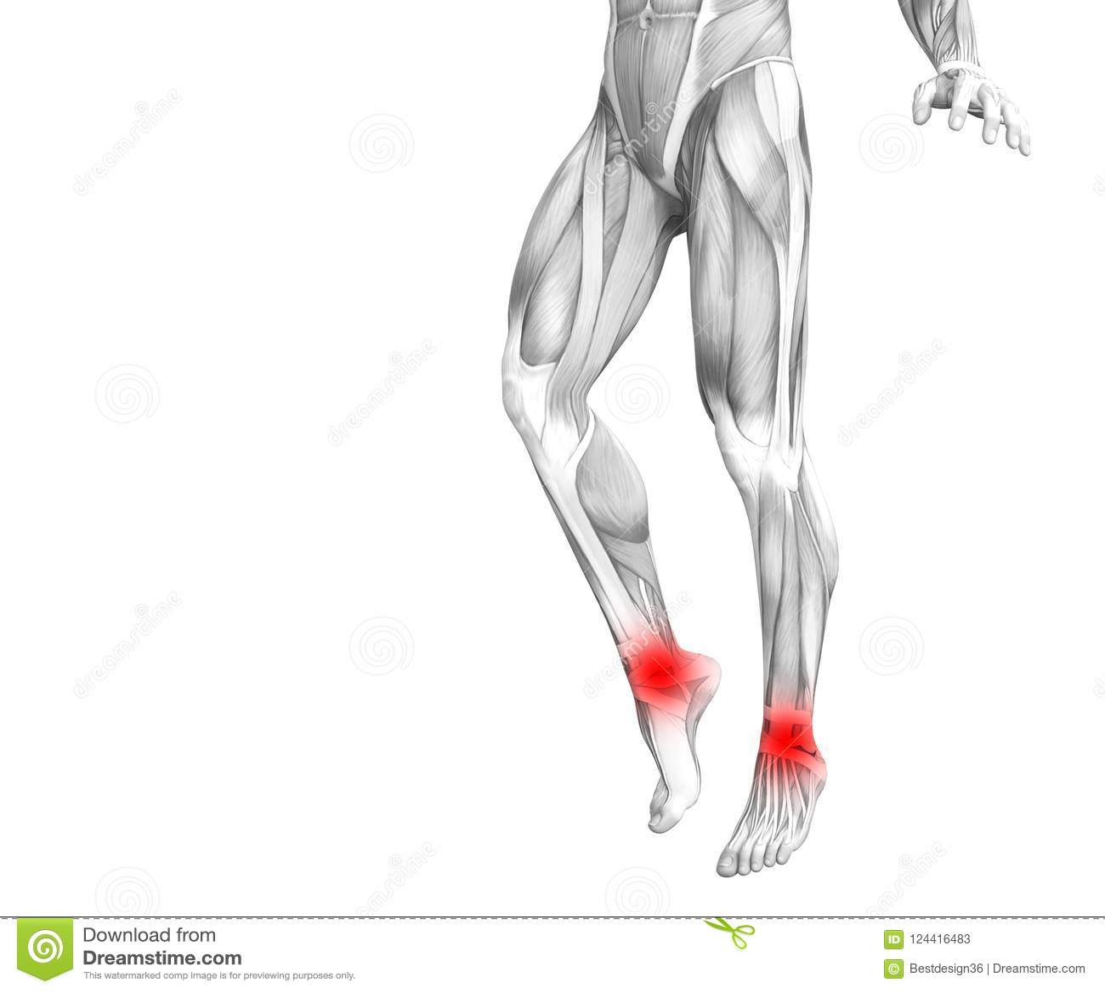 Ankle Human Anatomy Hot Spot Inflammation Stock Illustration ...