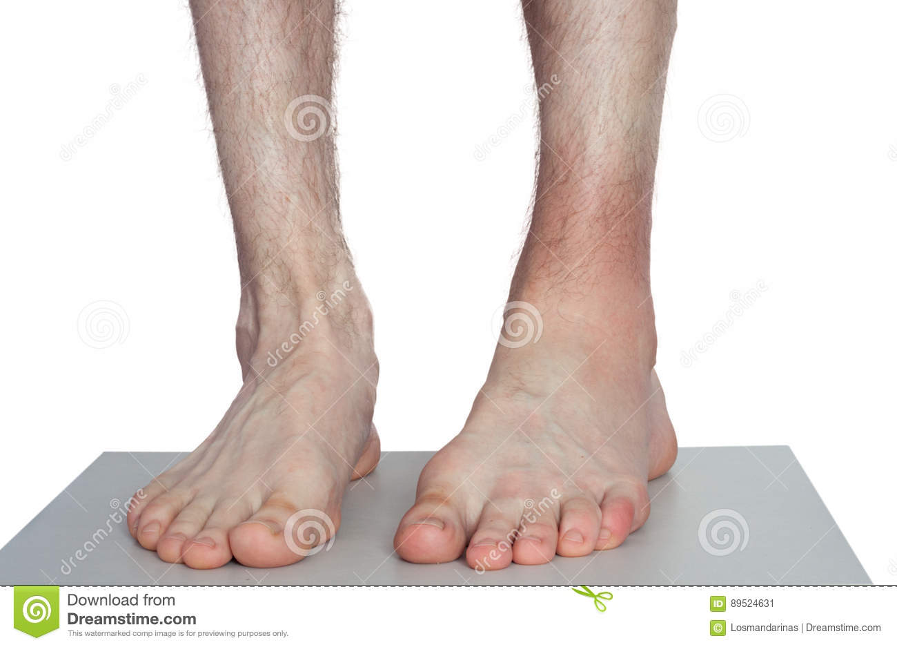 Ankle injury stock image. Image of anatomy, background - 89524631