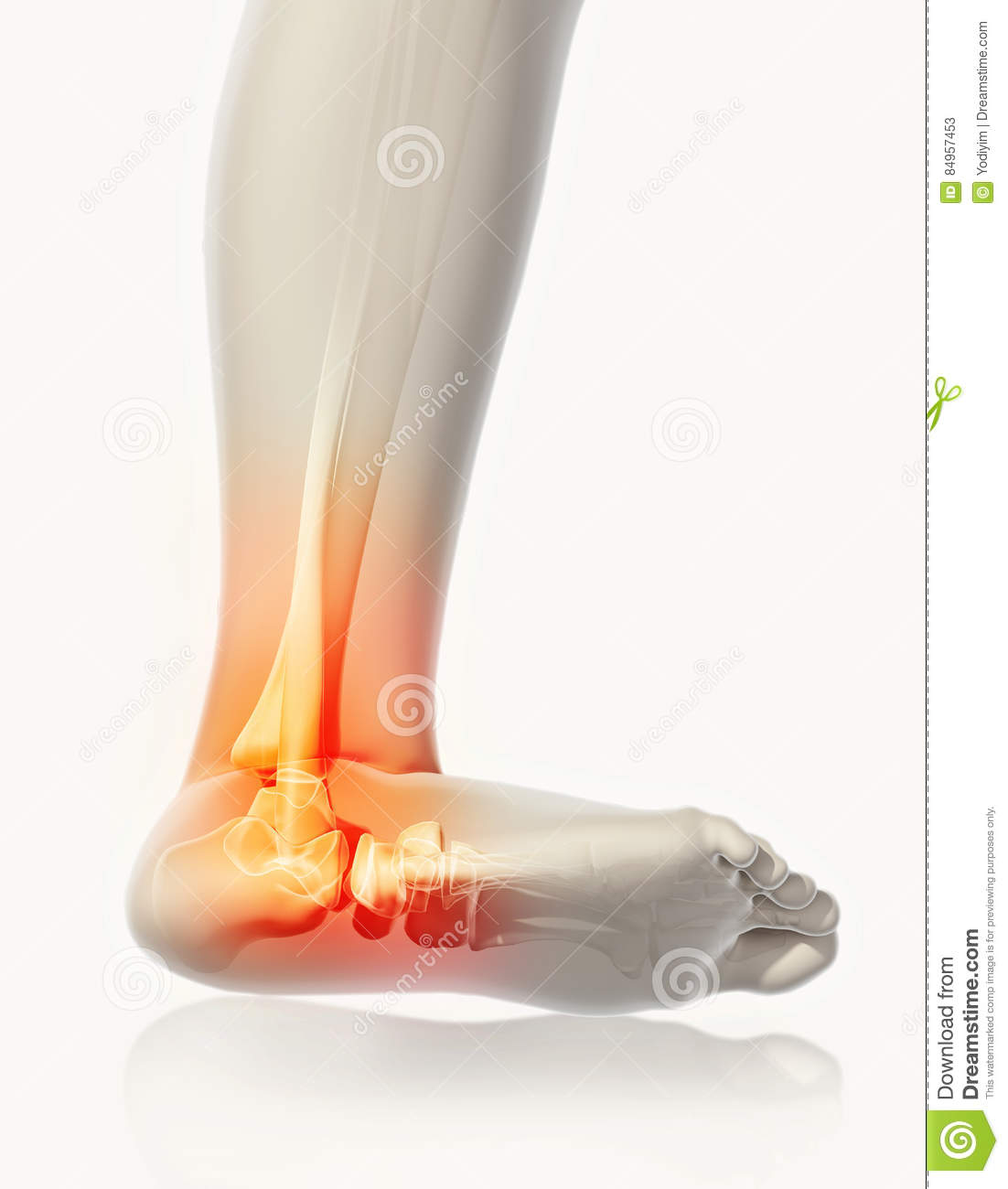 Ankle Painful Skeleton X Ray Stock Illustration Illustration Of