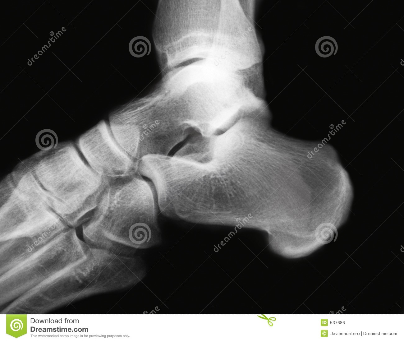 Ankle x-ray