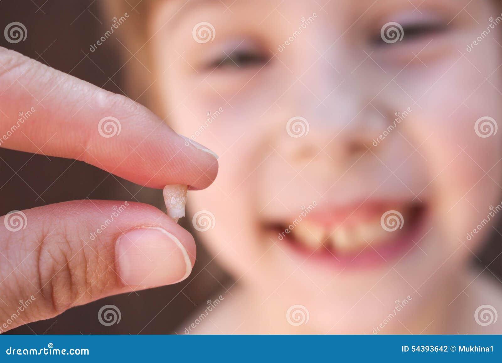 A 6 anni il bambino ha perso il dente da latte La ragazza sta tenendo il dente in sua mano