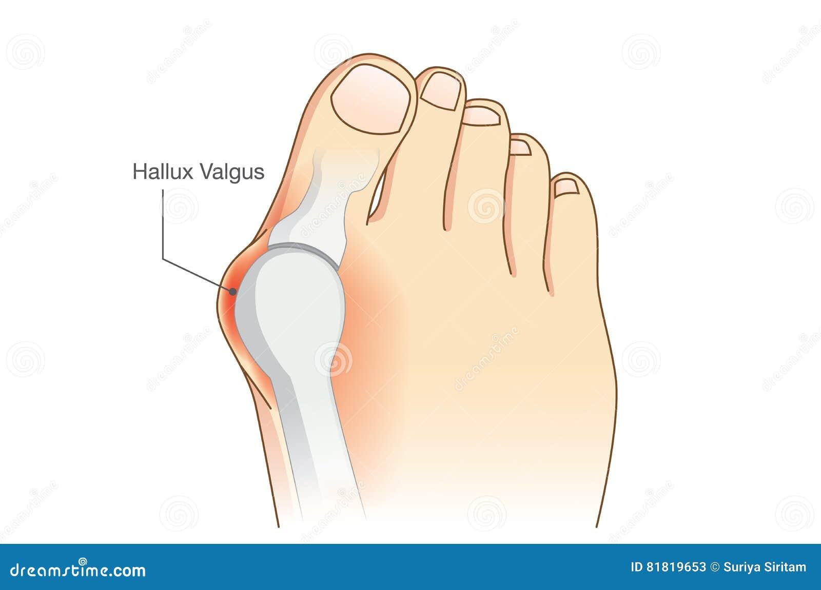 Anormale di forma del piede dal dito del piede del giunto di deformità