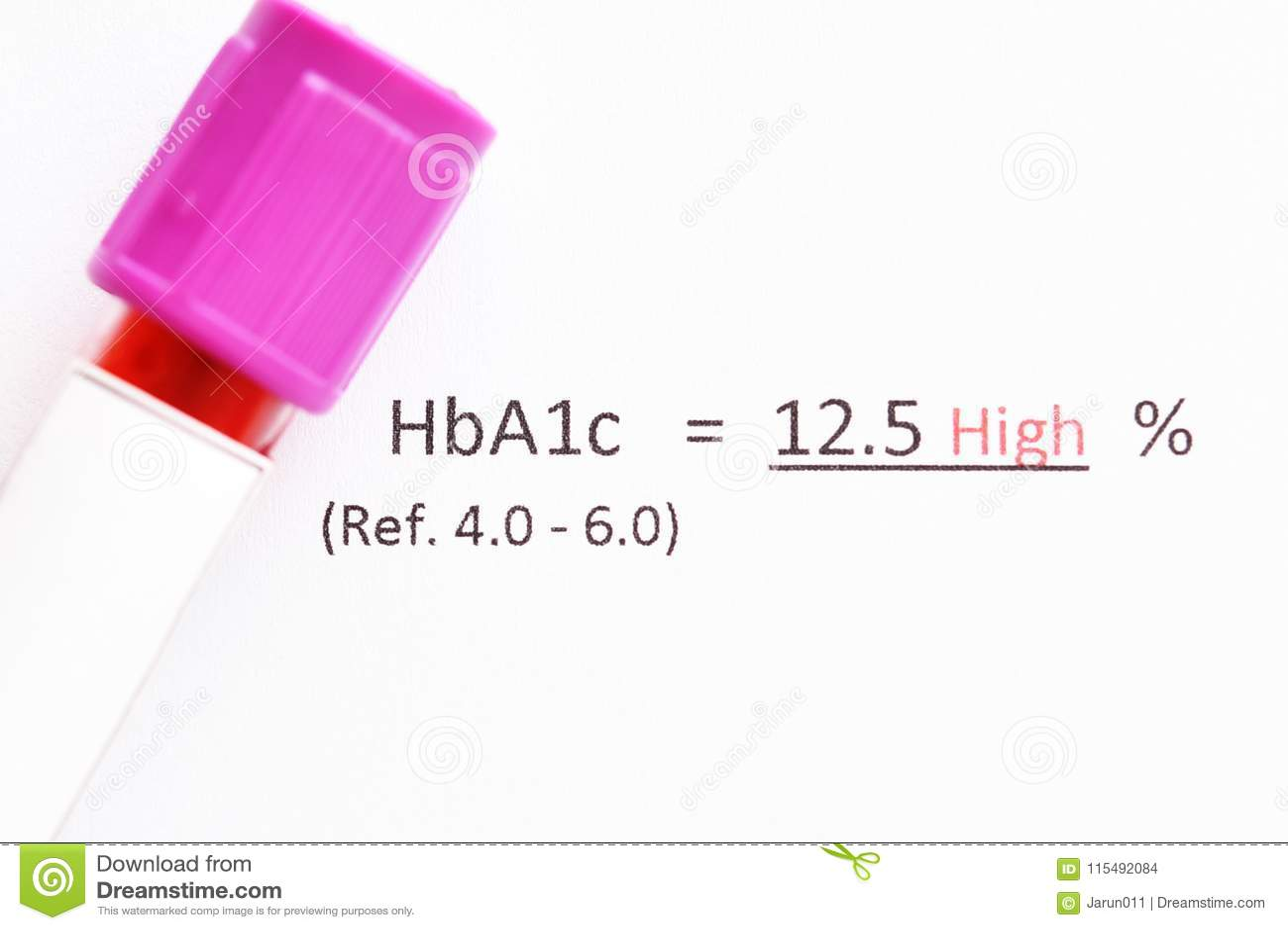 Anormales Testergebnis der hohen Stufe HbA1c