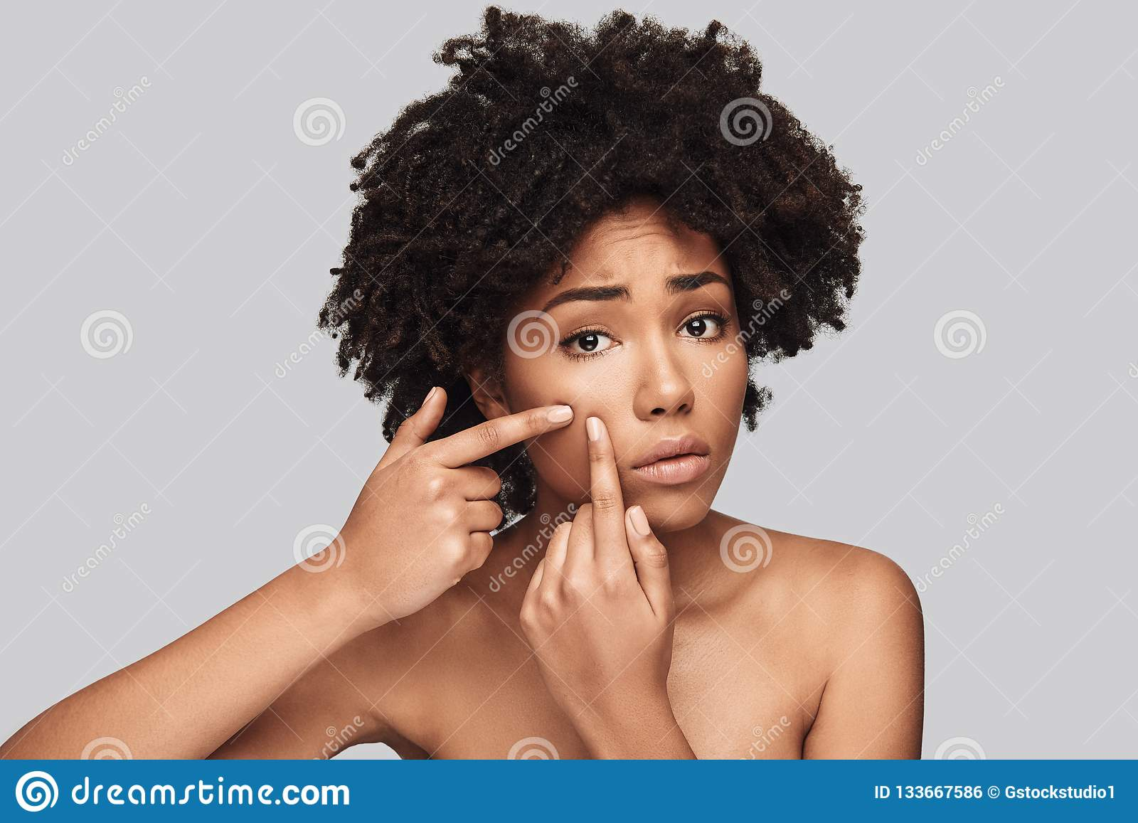 Another Acne Stock Photo Image Of Mixed Emotion Camera 133667586