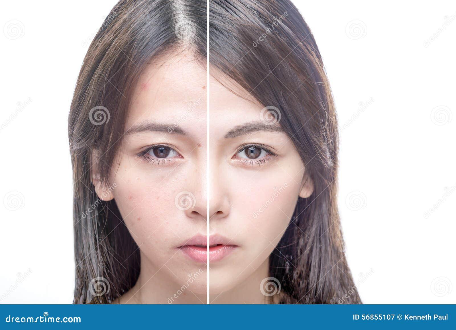 Antes e depois do retrato da beleza