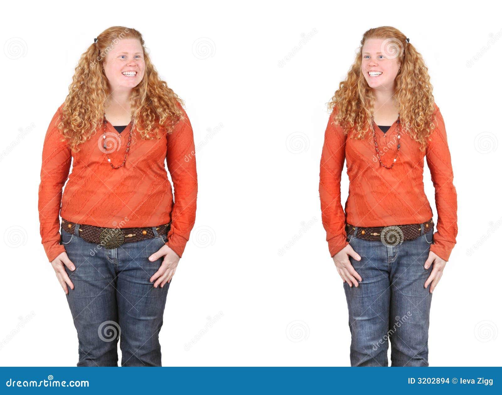 Antes y después de pérdida de peso