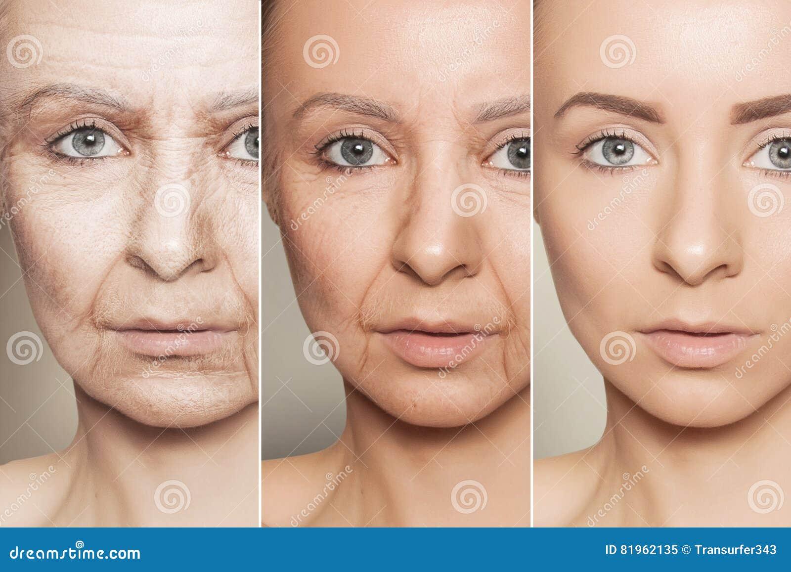 Anti-veroudert procedures aangaande Kaukasisch vrouwengezicht