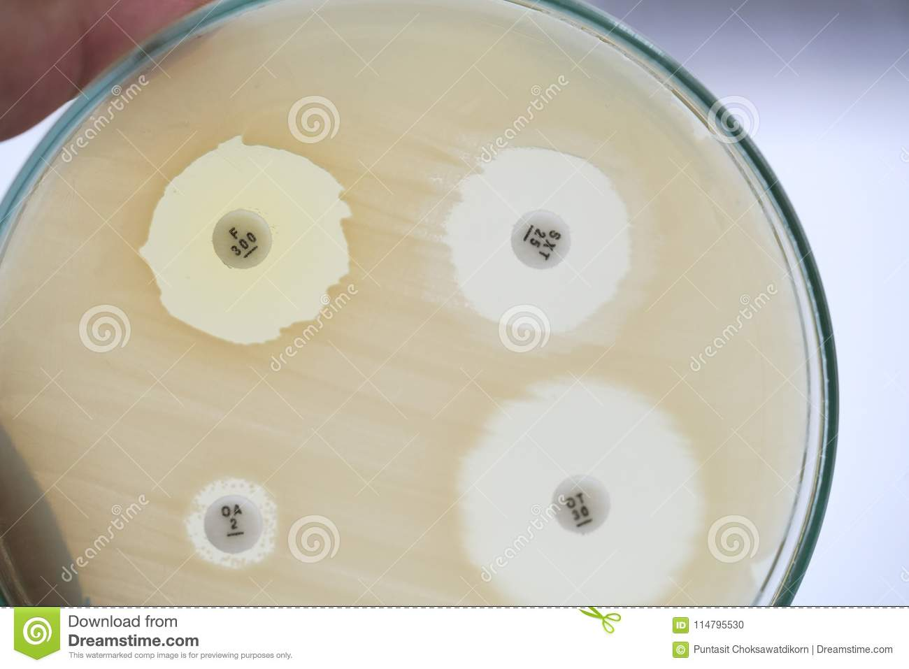 Antibiotic sensitivity of bacteria by means of diffusion test is