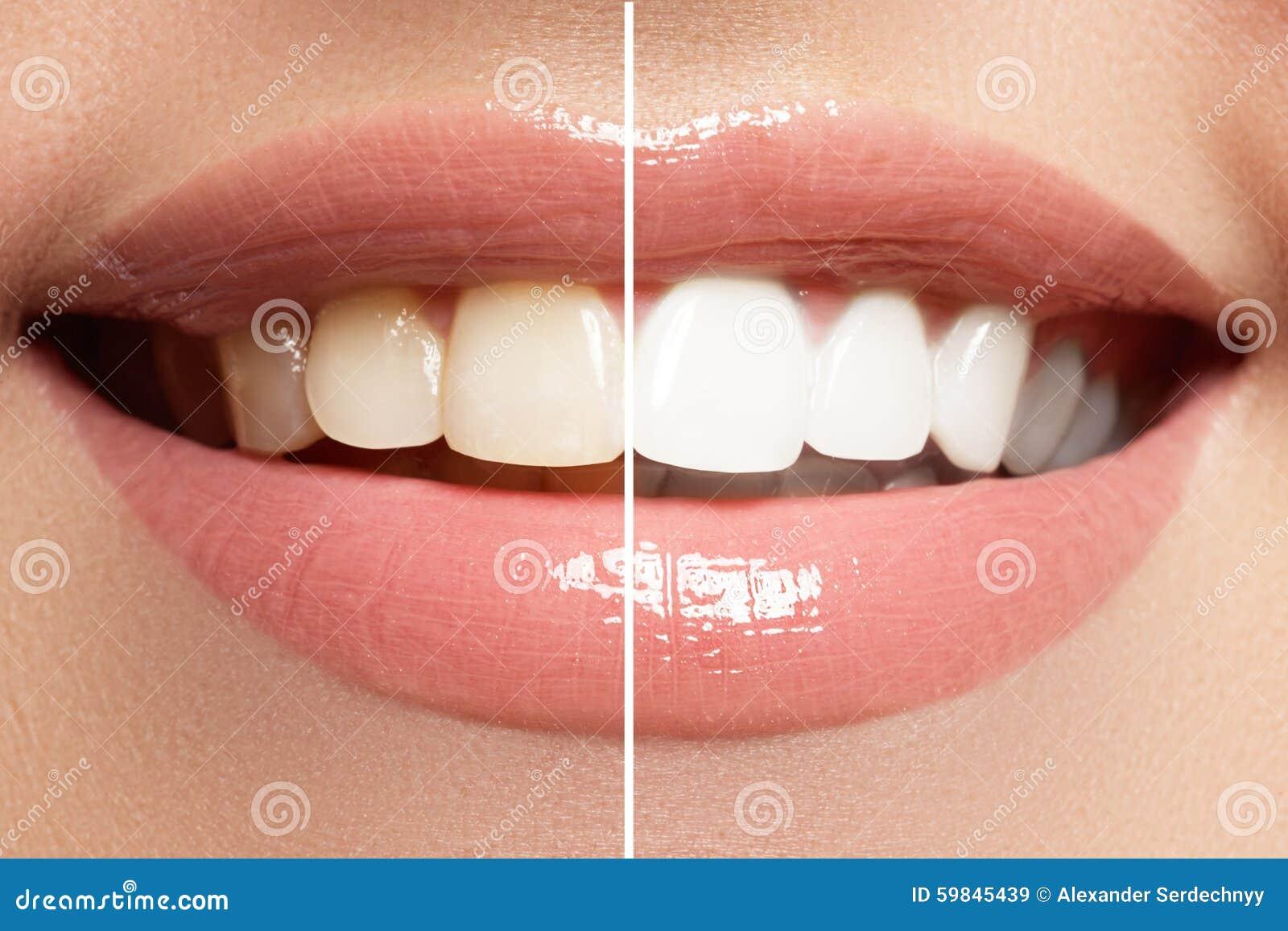 Aperfeiçoe o sorriso antes e depois do descoramento Dentes dos cuidados dentários e do alvejante