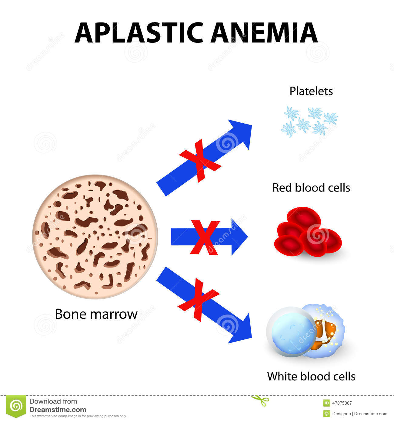sickle cell vs leukemia essay Running head: sickle cell anemia vs leukemia: battle of the� � page \ mergeformat �1� �� sickle cell anemia vs.