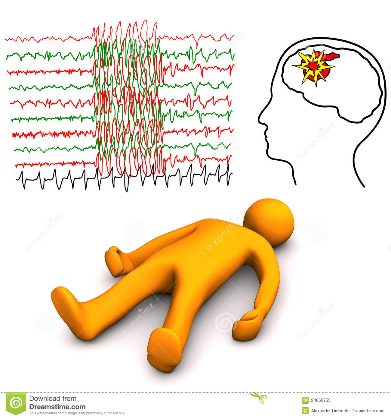 Apoplectic And Epilept...