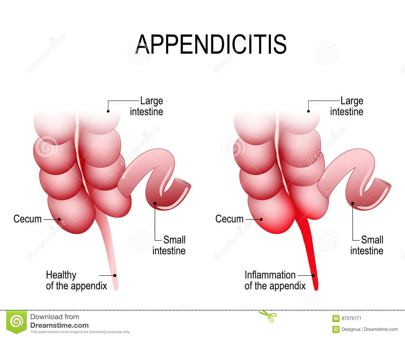 Appendicitis stock vector illustration of intestine 87376771 appendicitis royalty free vector ccuart Gallery