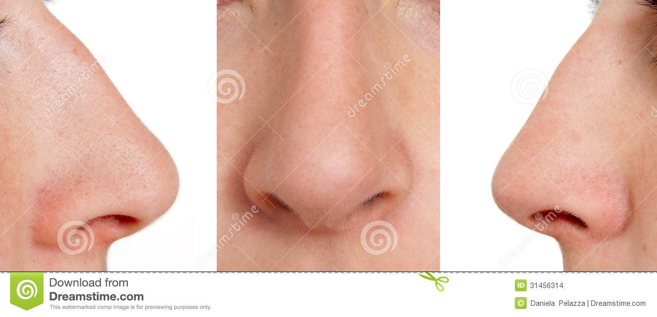 Aquiline Nose Stock Images - Image: 31456314