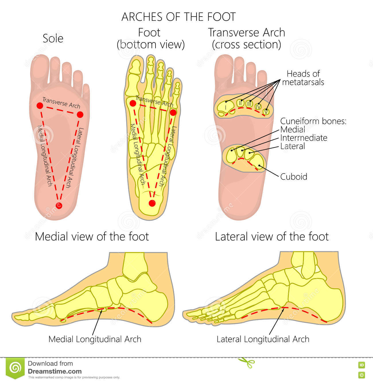 Arches of the foot stock vector. Illustration of damage - 76806055