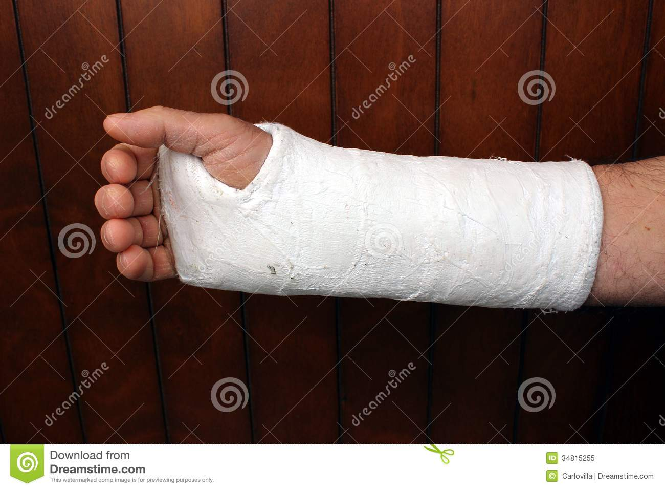 Arm In Plaster Royalty Free Stock Photo - Image: 34815255