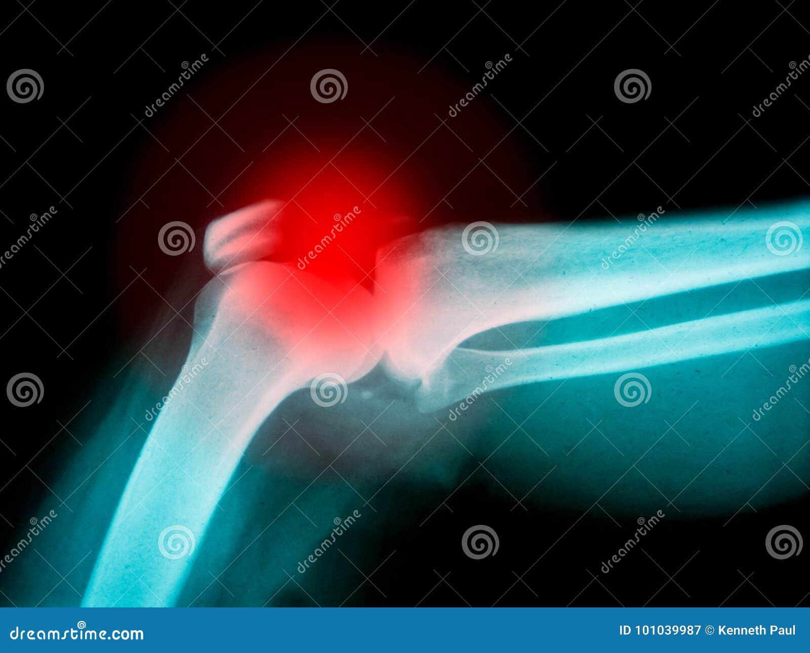 Arm X-ray with highlight on broken bone