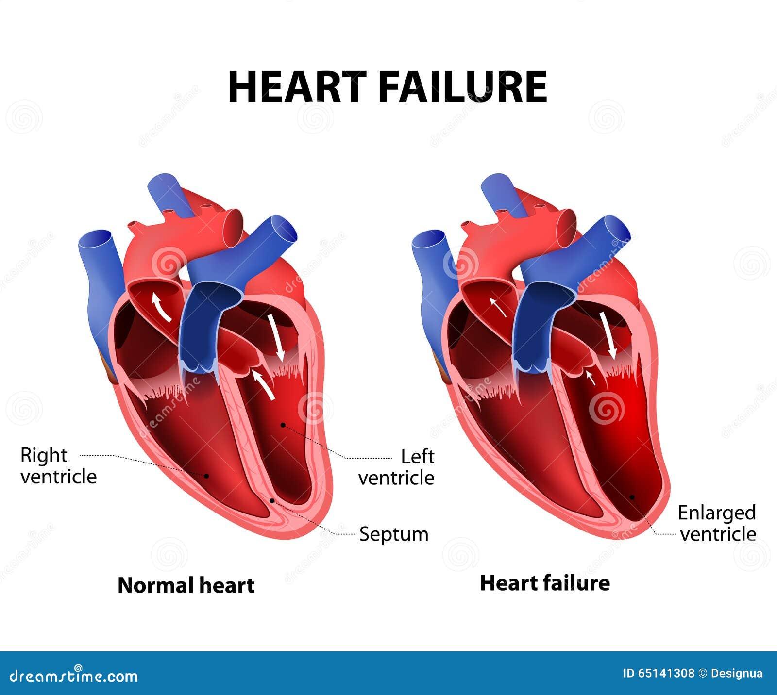 Arrêt du coeur