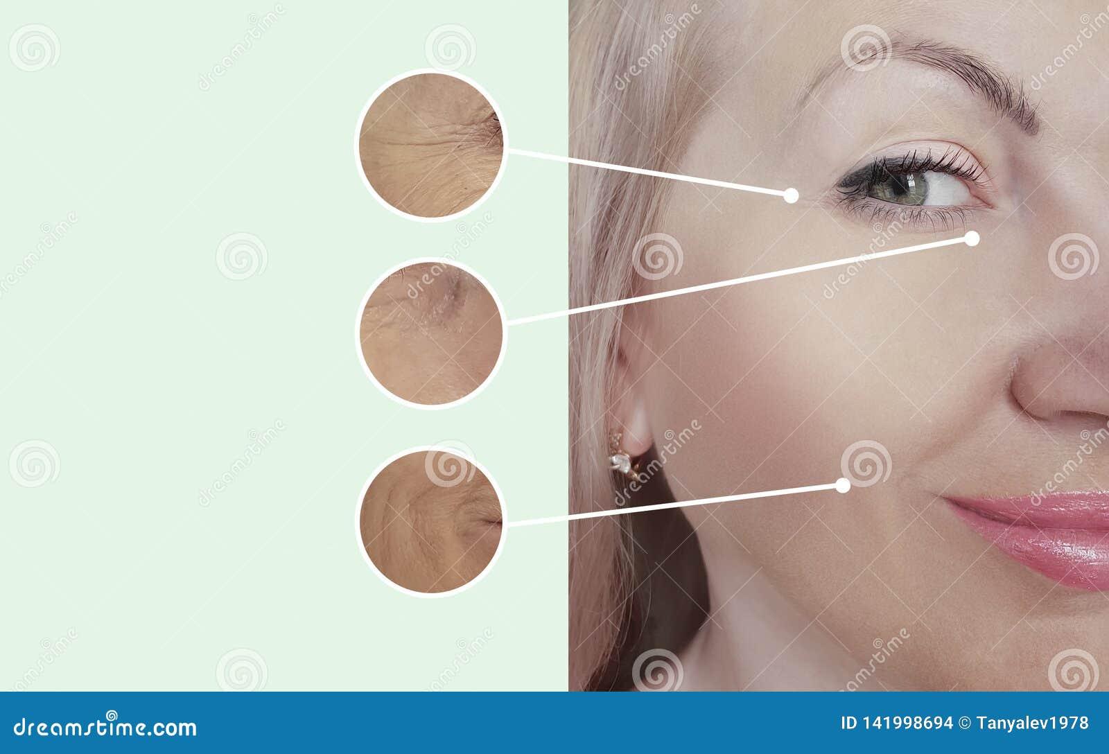 Arrugas de la mujer antes después del contraste de los procedimientos de la regeneración del collage