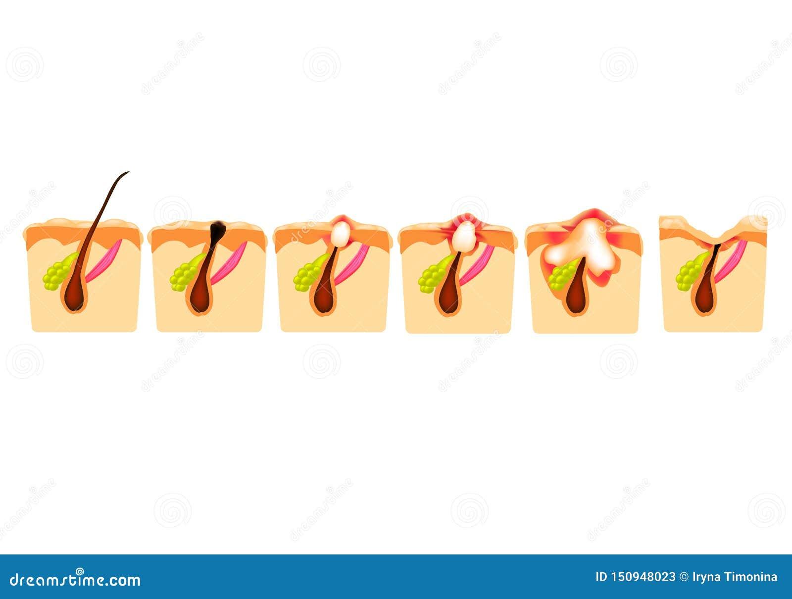 Arten der Akne Geschlossene Comedones, offene Comedones, entflammte Akne, Zysten Entflammte Pickel Die Struktur der Haut narbe