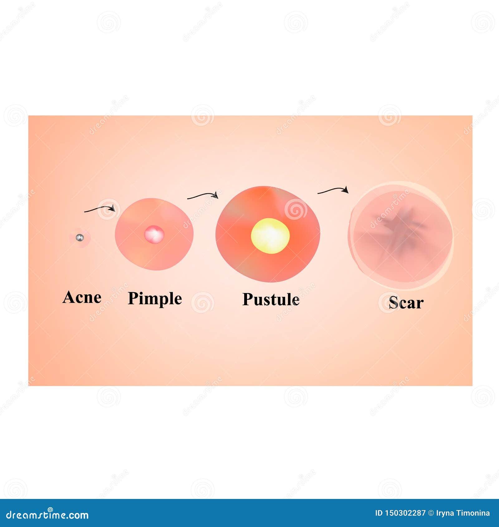 Arten von Mitessern, Pustel, Akne Geschrammte Haut nach Akne und Akne Infographics Vektorillustration auf lokalisiert