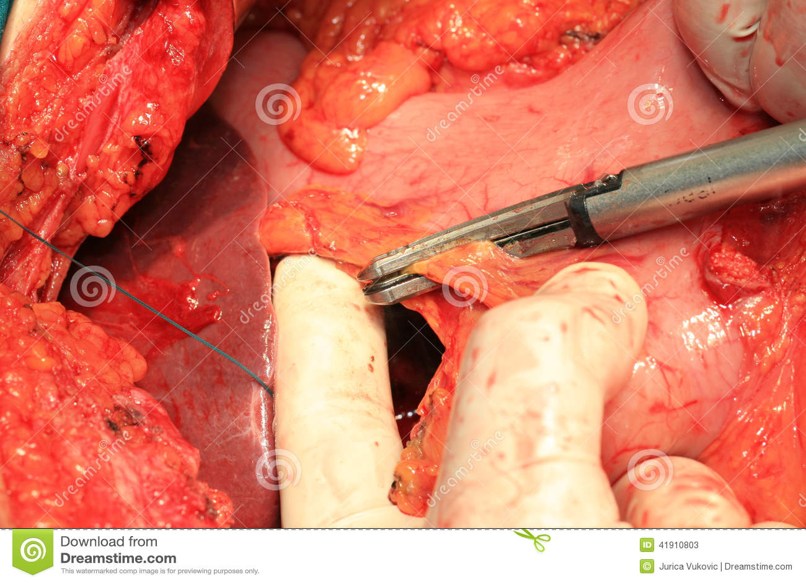 Arterias y venas abdominales