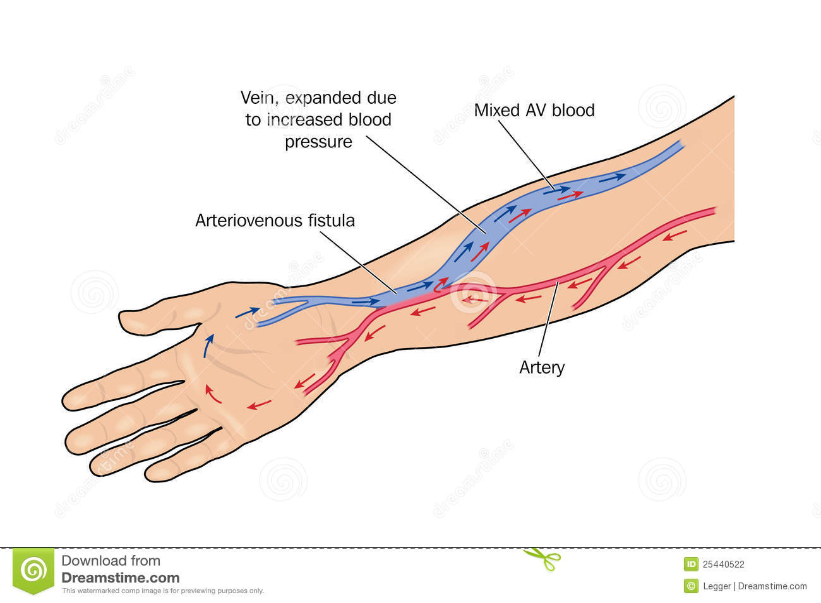 arteriovenous fistula stock illustration illustration of artery