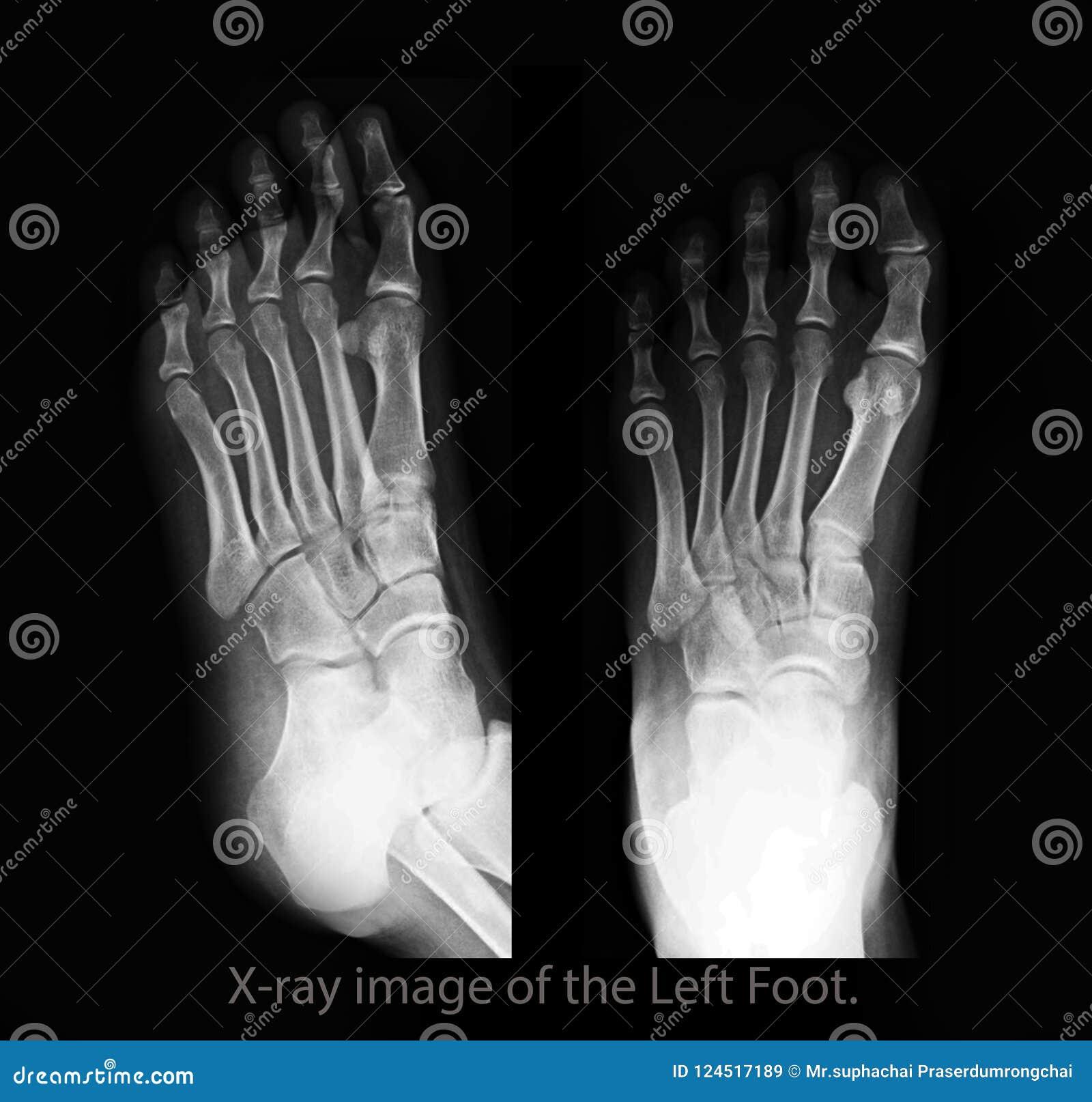 Arthrite Gouty filmez le rayon X de la vue de côté avant et de pied gauche