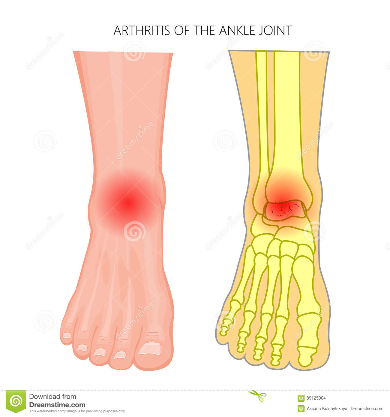 Arthritis Of The Ankle Joint Stock Vector - Illustration of foot ...