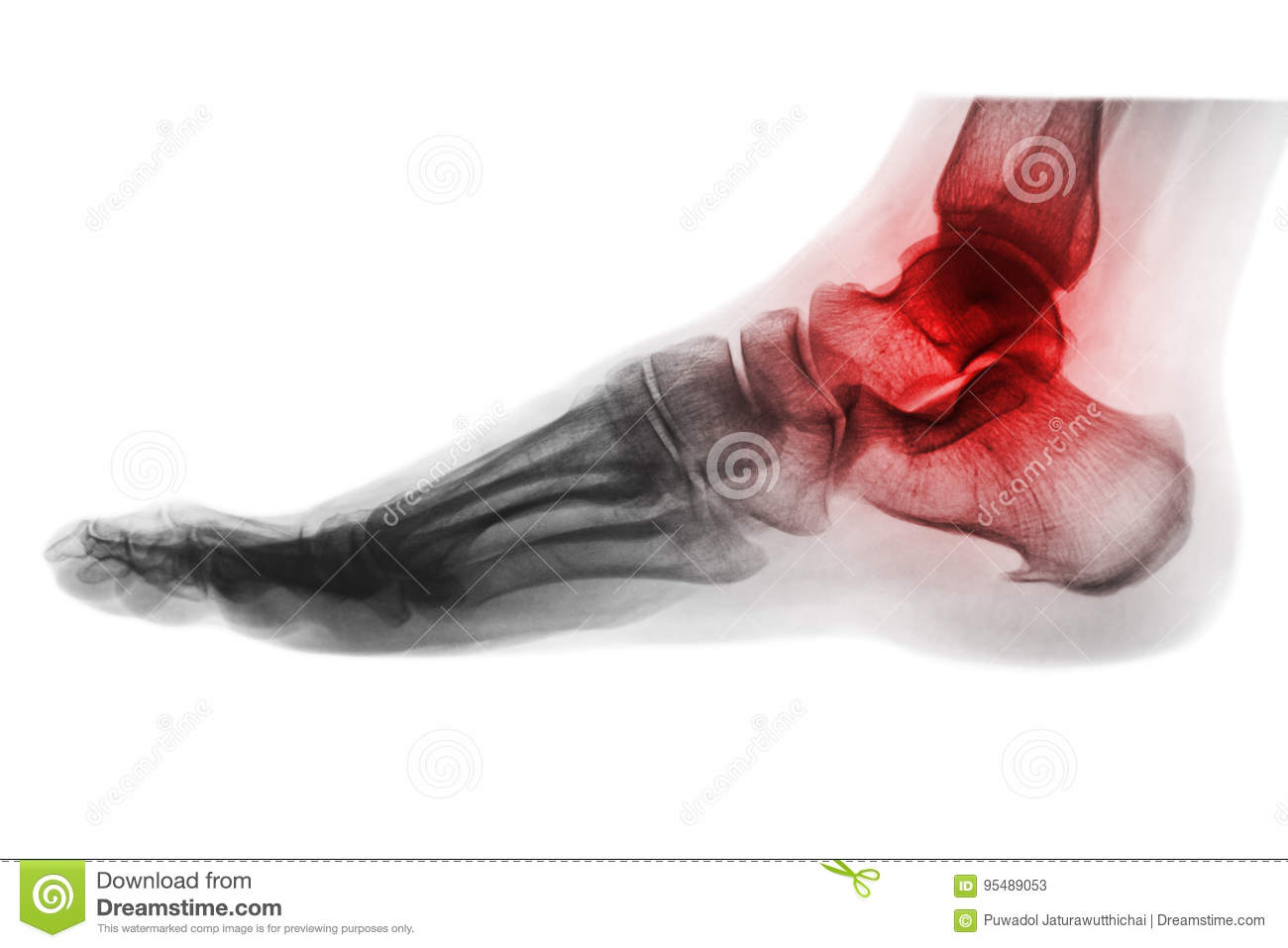 Arthritis Of Ankle   X-ray Of Foot   Lateral View   Invert