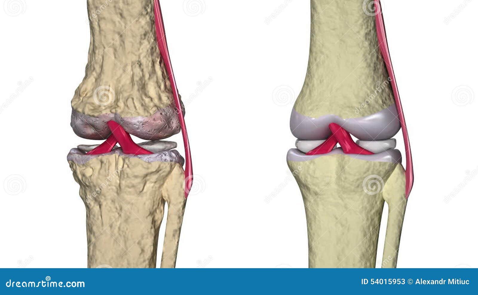 Arthrose: Kniegelenk Mit Ligamenten Und Den Knorpeln Stock Video ...