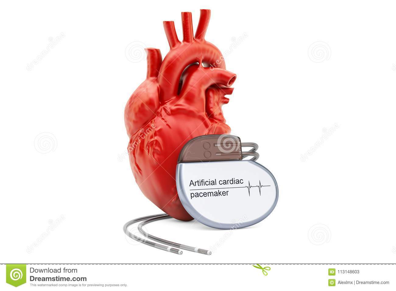 Artificial Cardiac Pacemaker With Human Heart 3d Rendering Stock