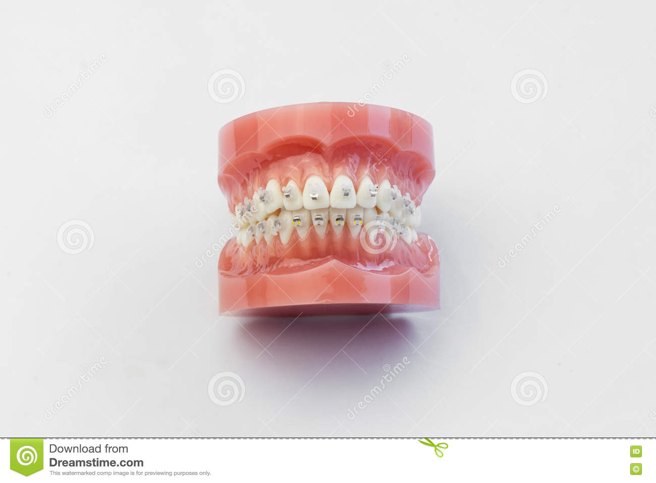 Funky Mouth Wired Shut And Plated Image - Electrical Diagram Ideas ...
