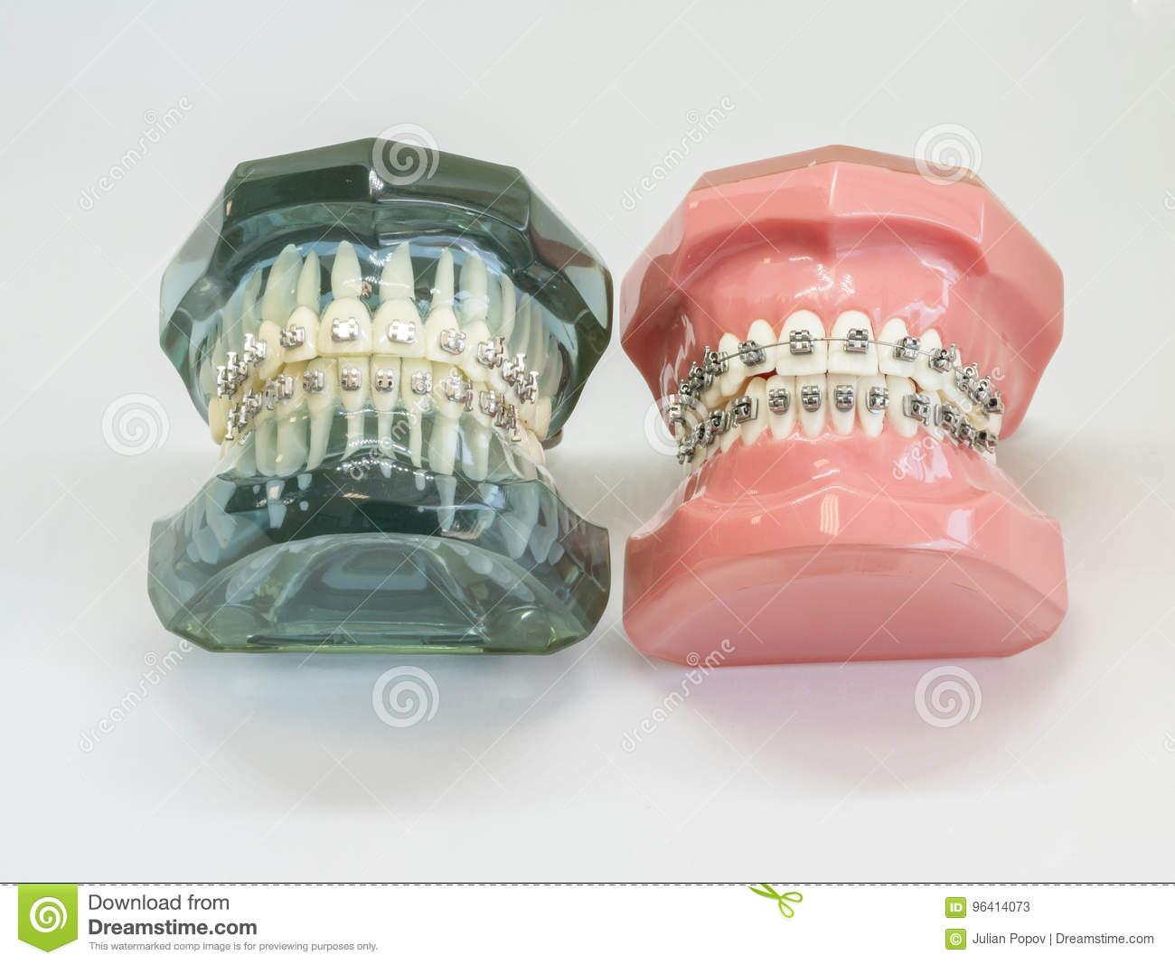Miraculous Artificial Model Of Human Jaw With Wire Colorful Braces Attached Wiring 101 Orsalhahutechinfo