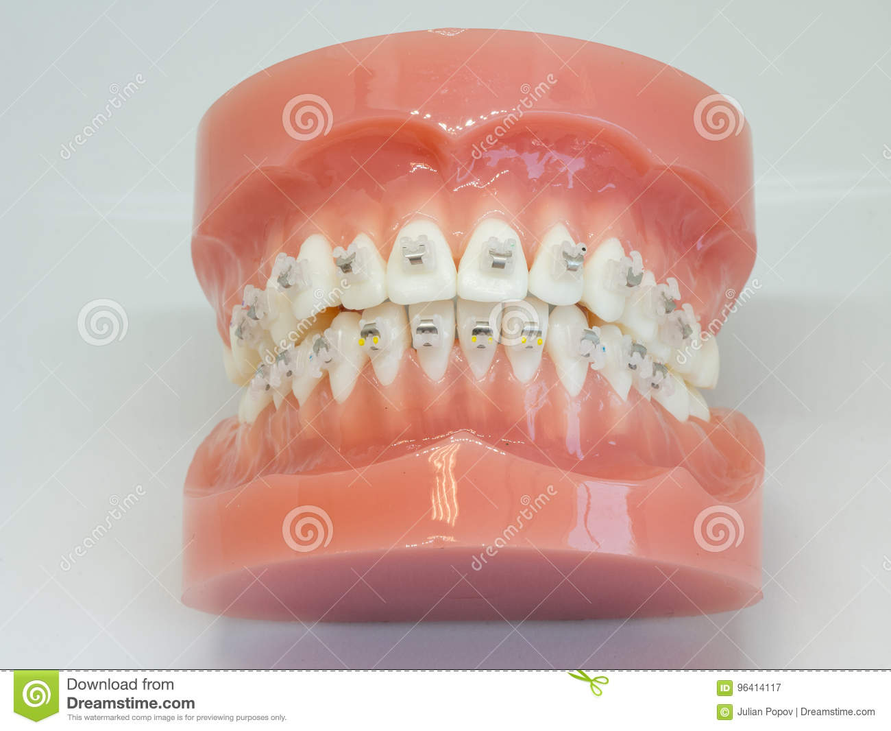 Awe Inspiring Artificial Model Of Human Jaw With Wire Colorful Braces Attached Wiring 101 Orsalhahutechinfo