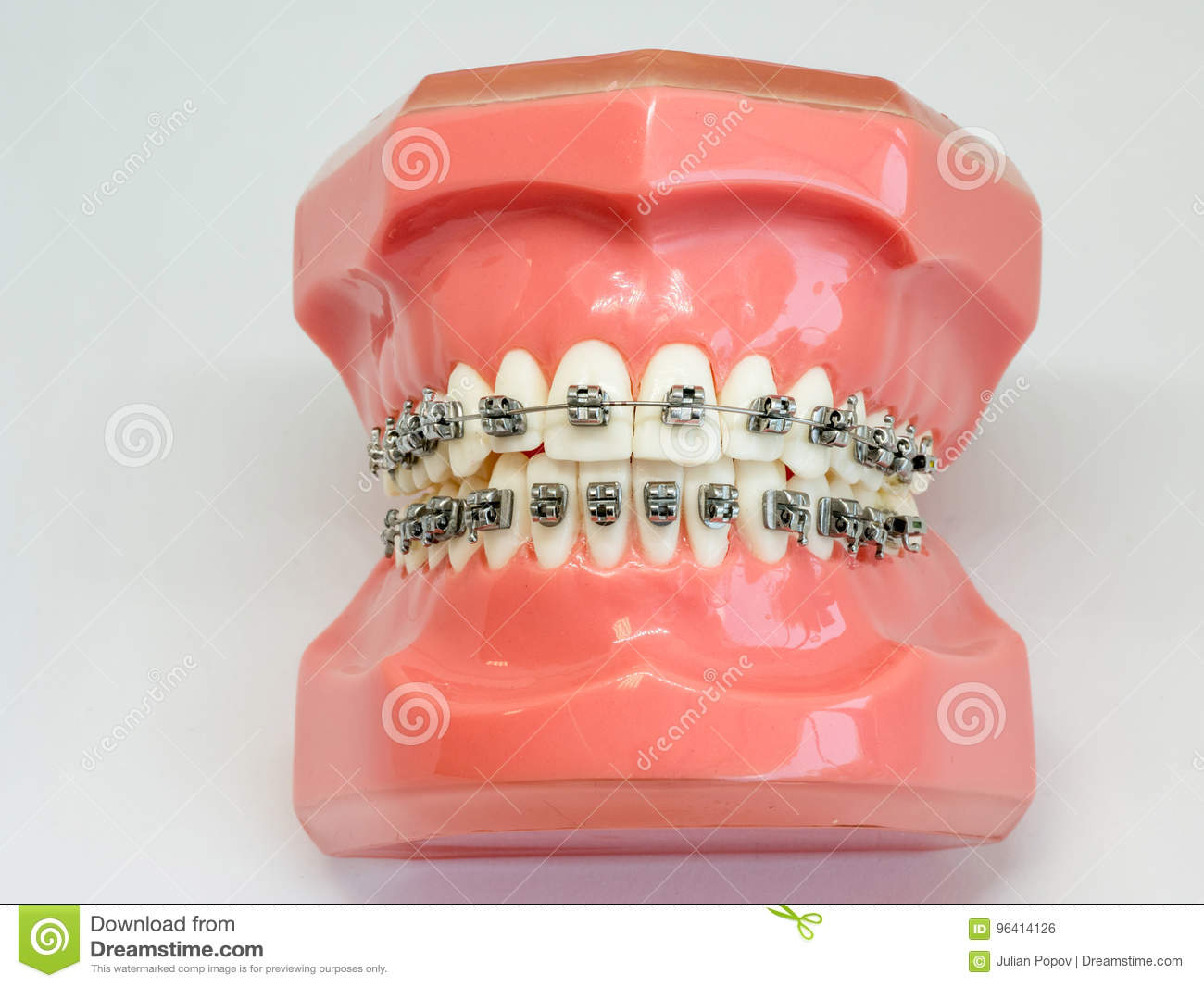 Artificial model of human jaw with wire colorful braces attached