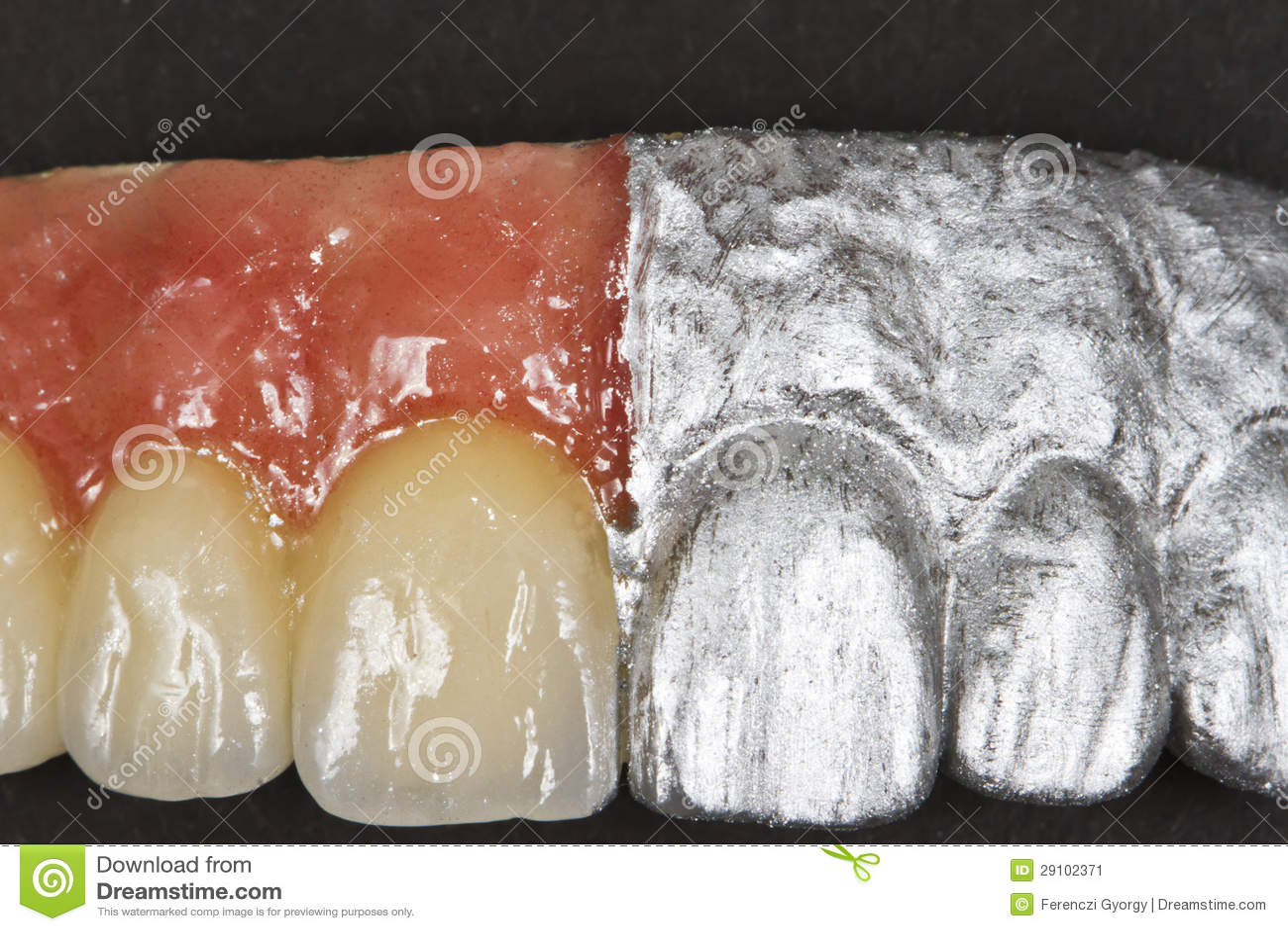 Artificial Teeth