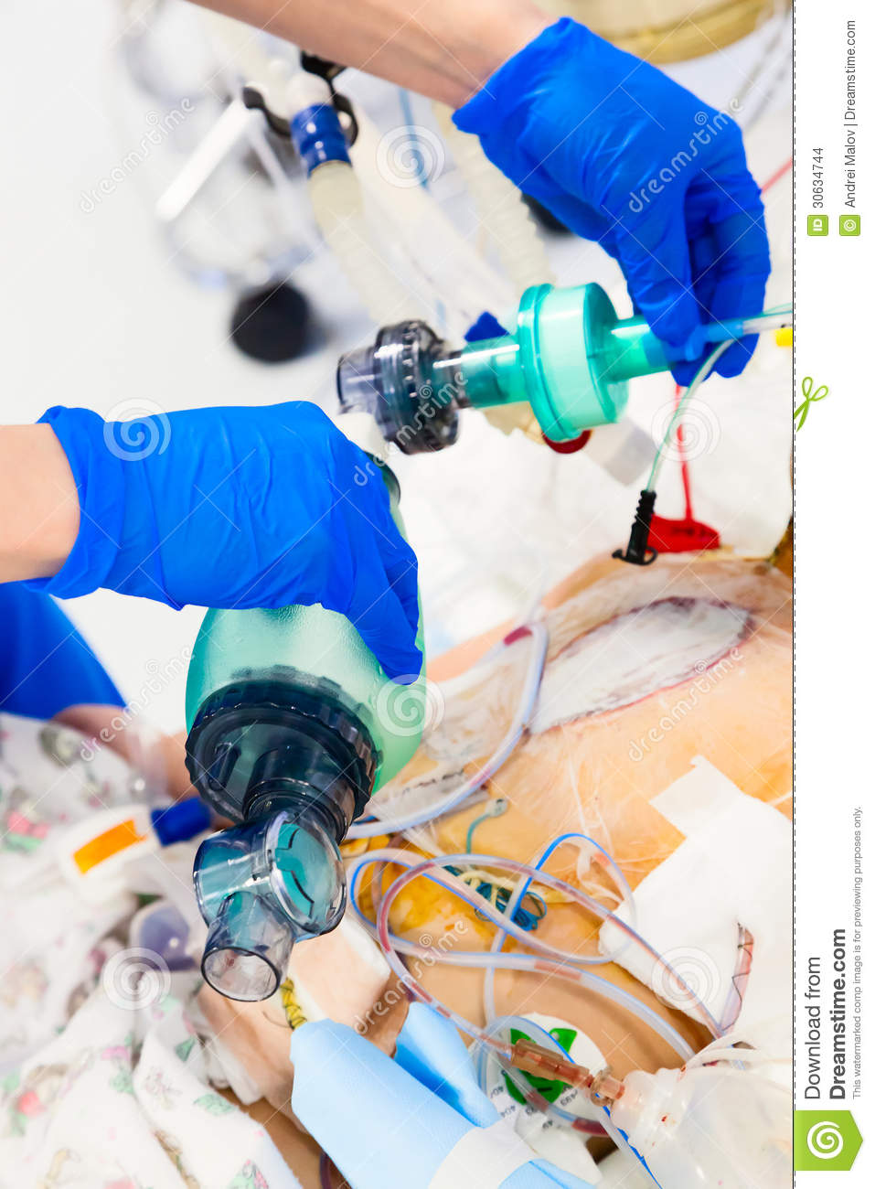artificial ventilation with bag-valve-mask stock photo - image of