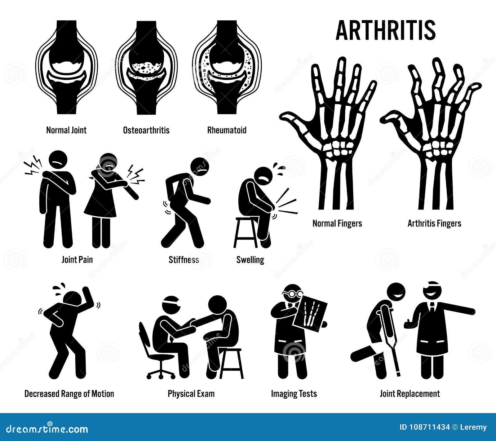 Artrite, dolori articolari ed icone di malattia del giunto