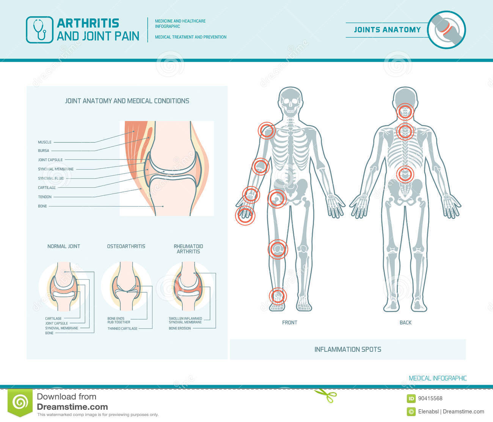 Artrite e dolori articolari infographic