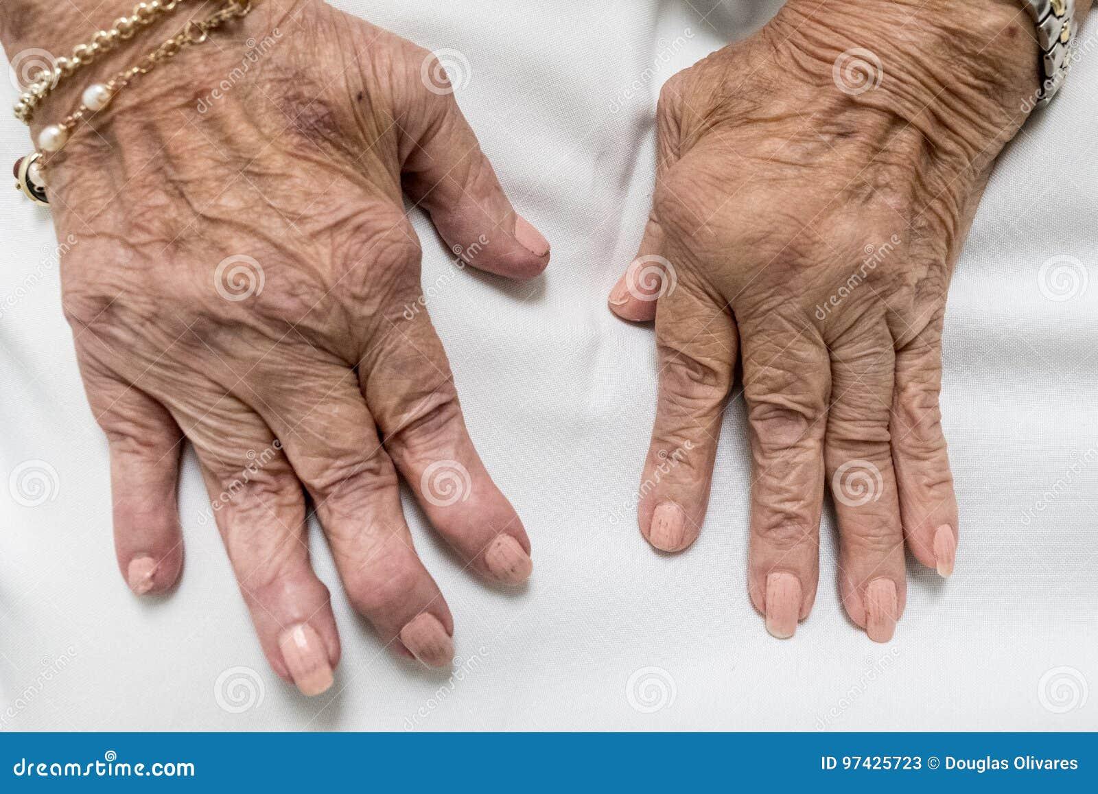 Artrite Reumatoide Mani Senior Immagine Stock Immagine Di Caldo Gonfiato 97425723