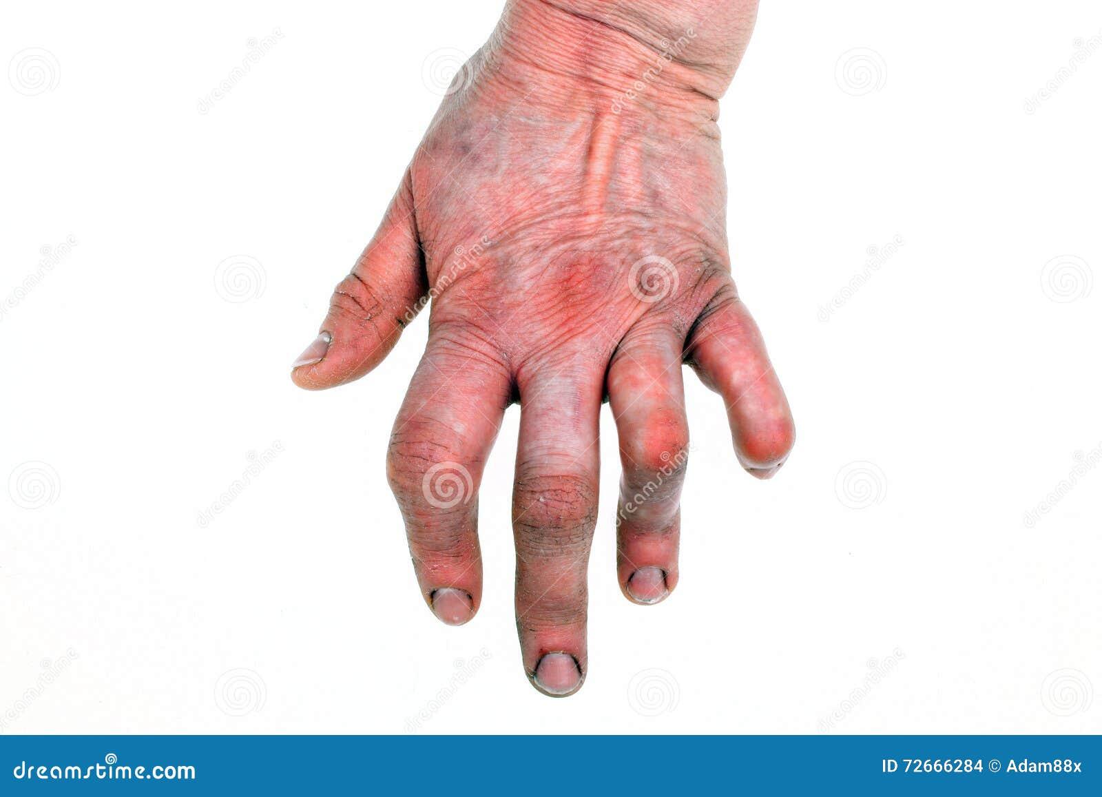 Artritis Reumatoide Foto De Archivo Imagen De Artritis 72666284