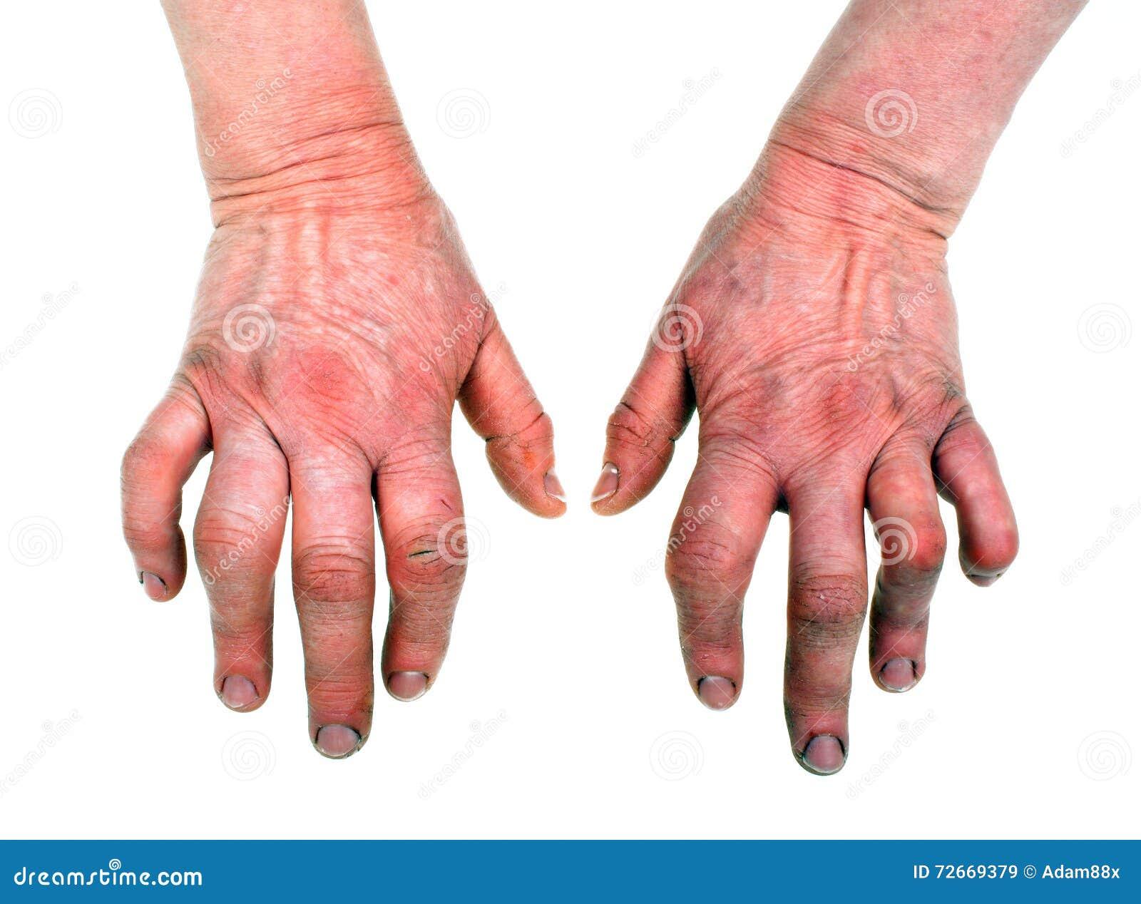 Artritis reumatoide imagen de archivo. Imagen de anatomía - 72669379