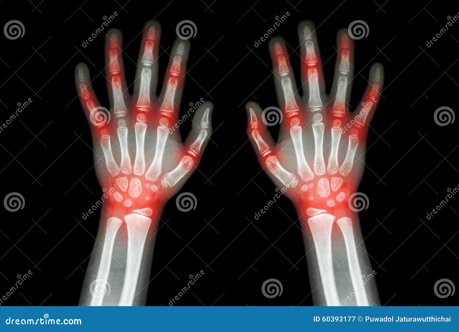 Artritis Reumatoide Artritis De La Gota Radiografía De La Película