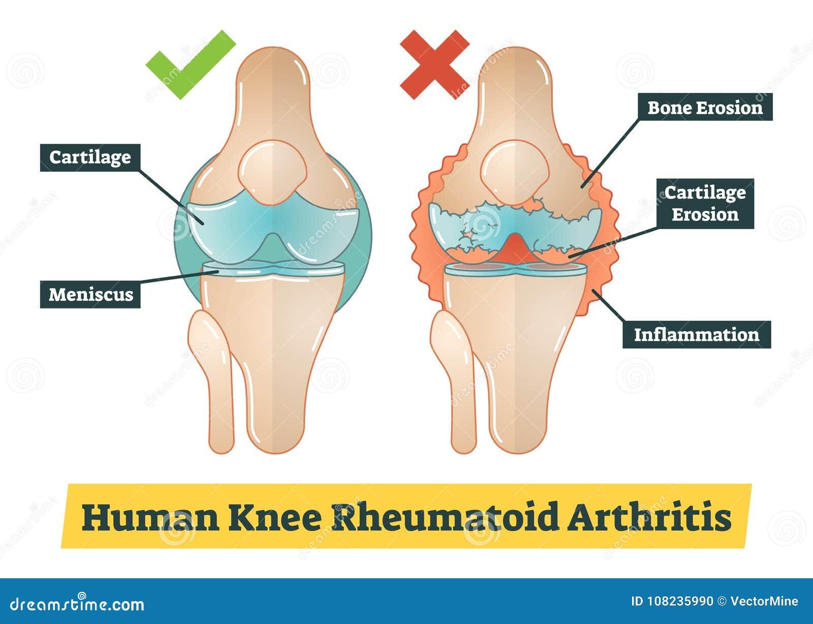 Artritis Reumatoide De La Rodilla Humana, Ejemplo Del Diagrama ...