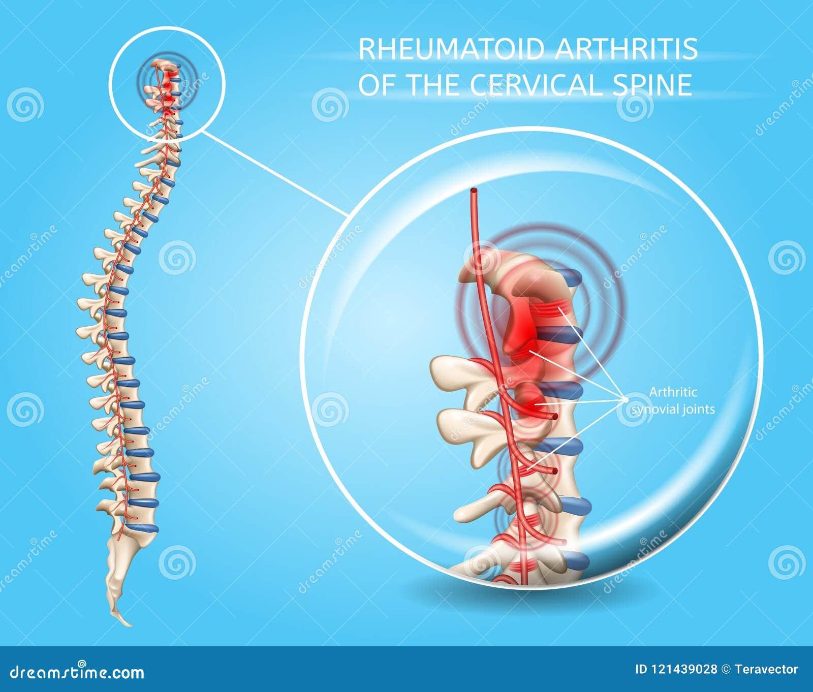 Artritis Reumatoide Del Vector Cervical De La Espina
