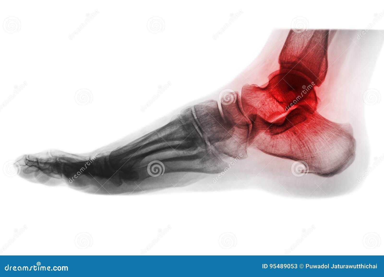 Artritis van enkel RÖNTGENSTRAAL VAN VOET bij concours in Zuid-Florida Keer kleurenstijl om