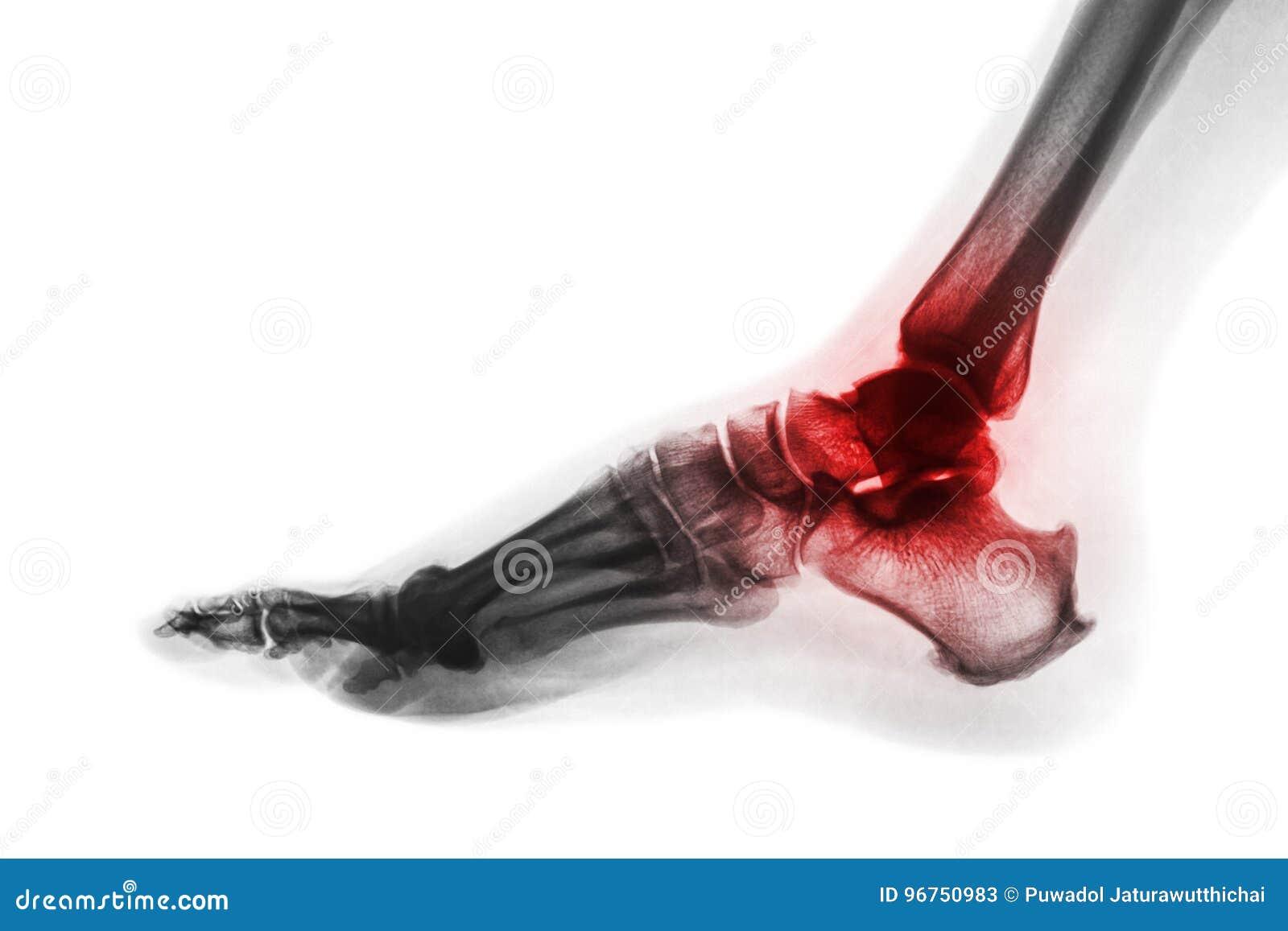 Artritis van enkel RÖNTGENSTRAAL VAN VOET bij concours in Zuid-Florida Keer kleurenstijl om Jicht of Reumatoïde concept