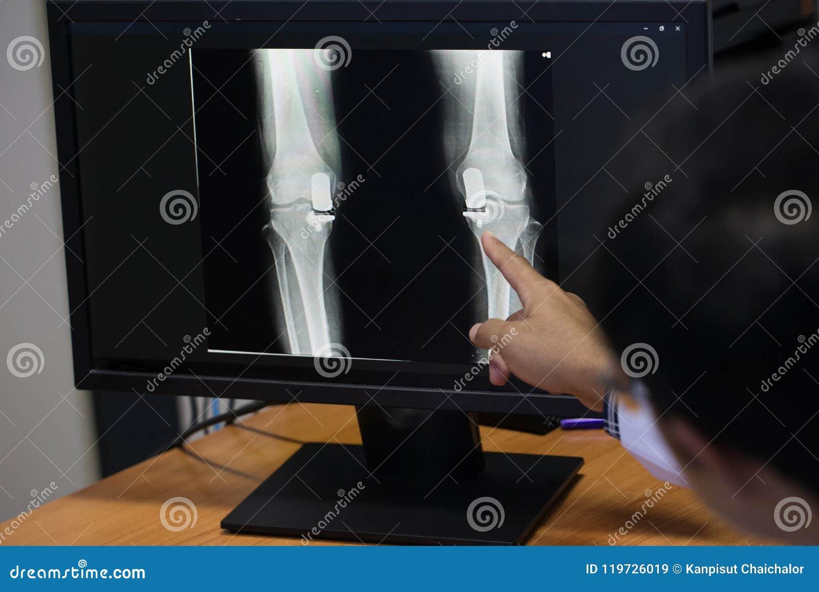 Arts die op het punt van het knieprobleem op x-ray film richten x-ray film toont skeletknie op film