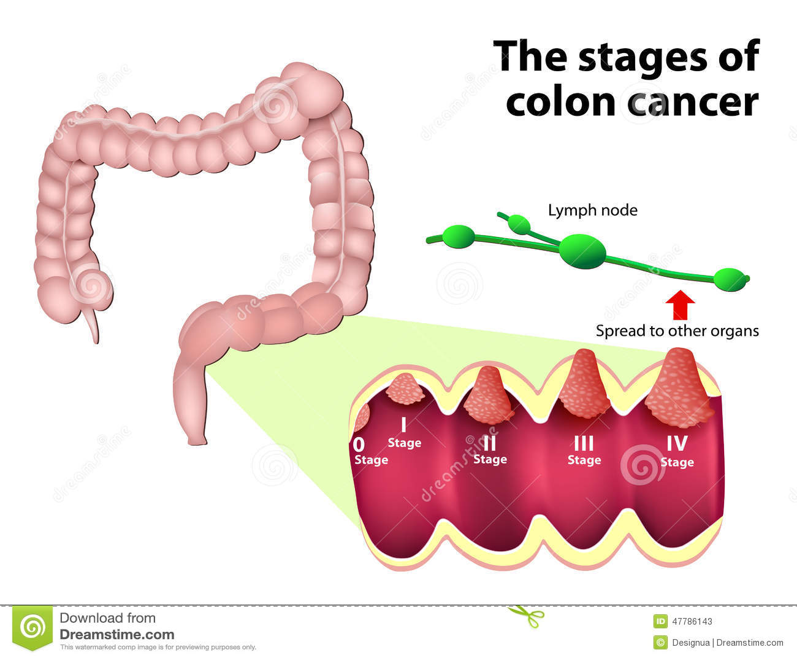Morcovii pot reduce riscul de cancer colorectal? | nucleus-mc.ro